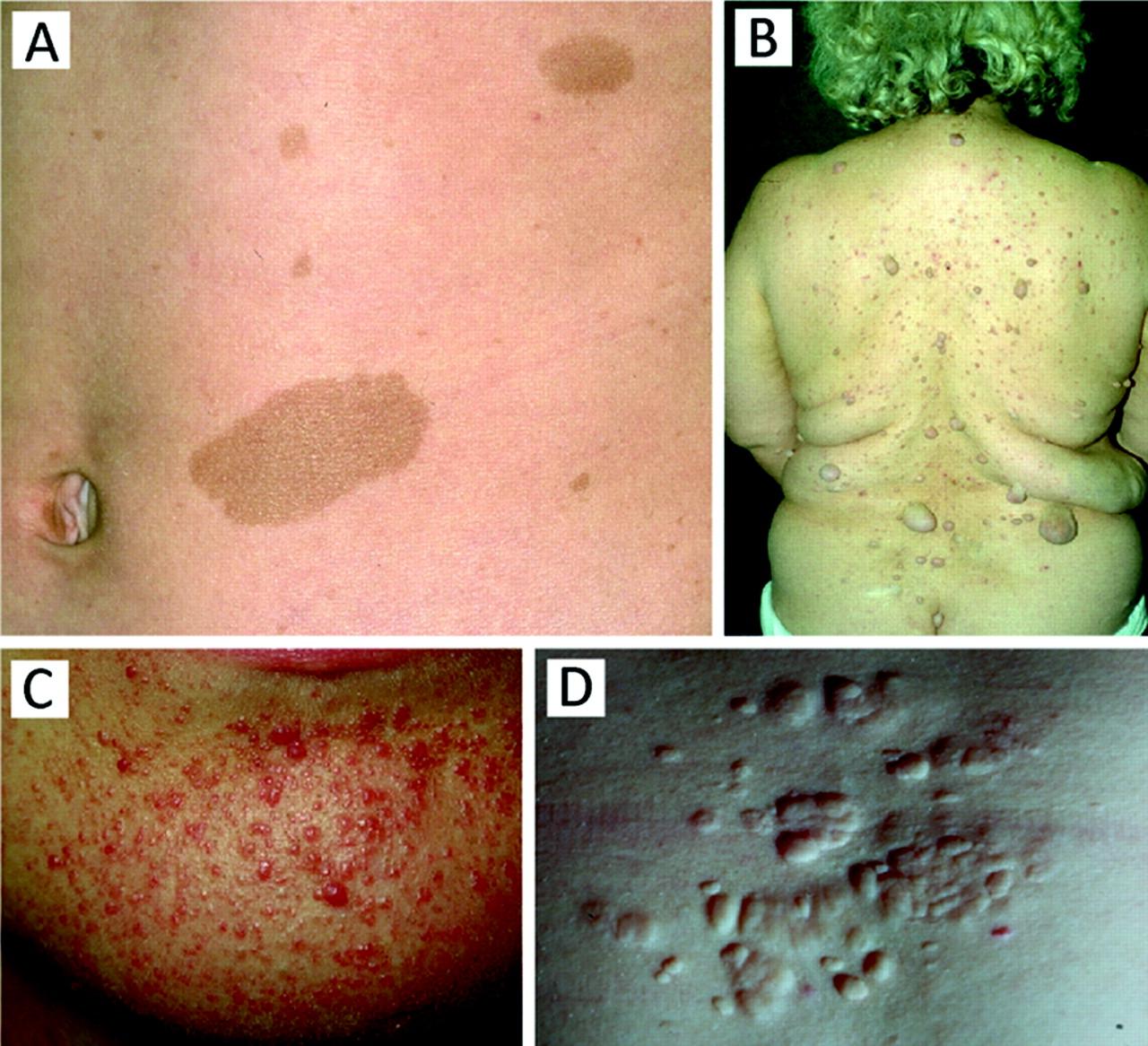 herald skin lesion