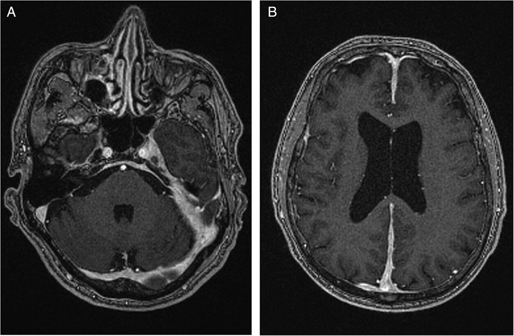 Cavernous sinus syndrome with pachymeningitis | Practical Neurology