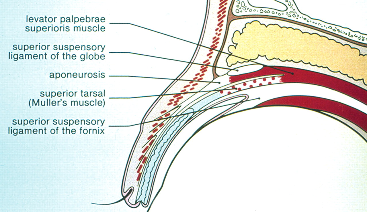 Ptosis | Practical Neurology