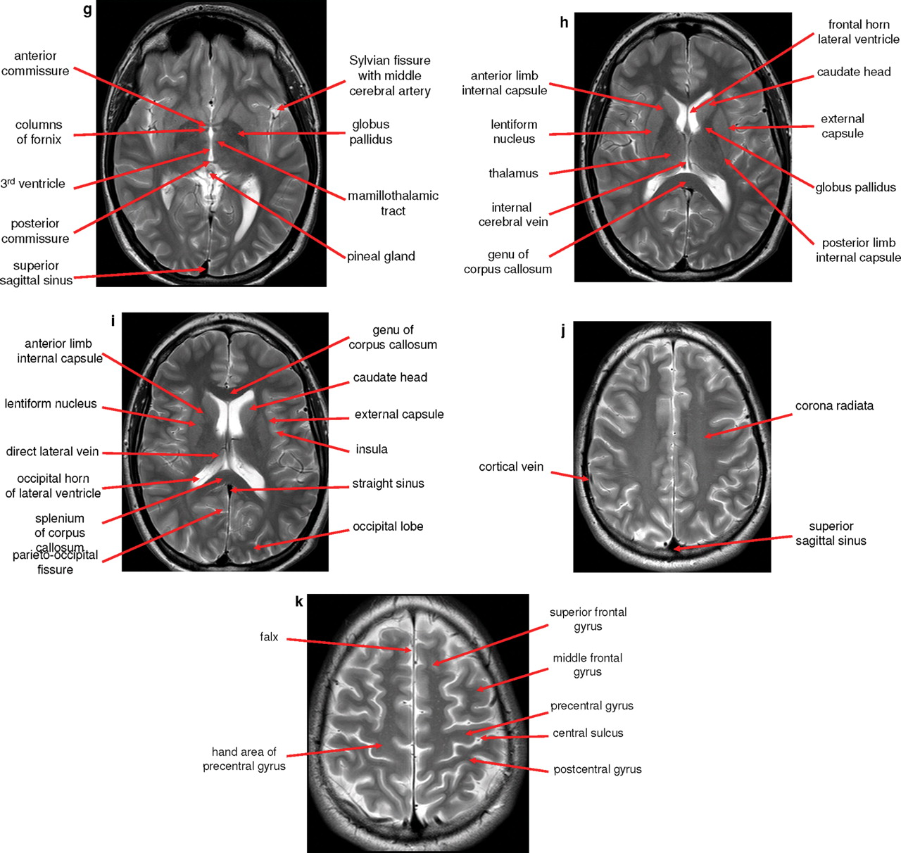 Normal anatomy of the brain on CT and MRI with a few normal variants ...