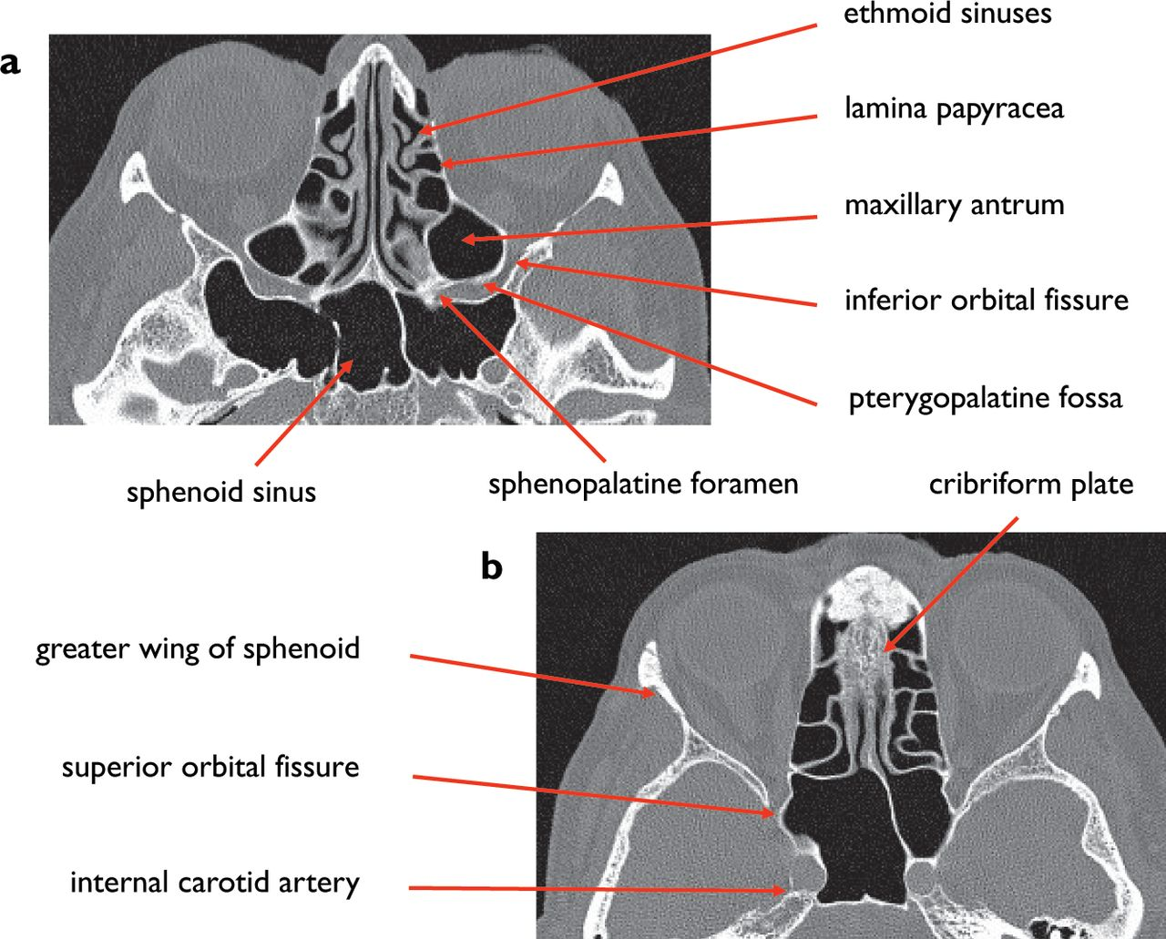 Normal Anatomy Of The Base Of The Skull Orbit Pituitary And