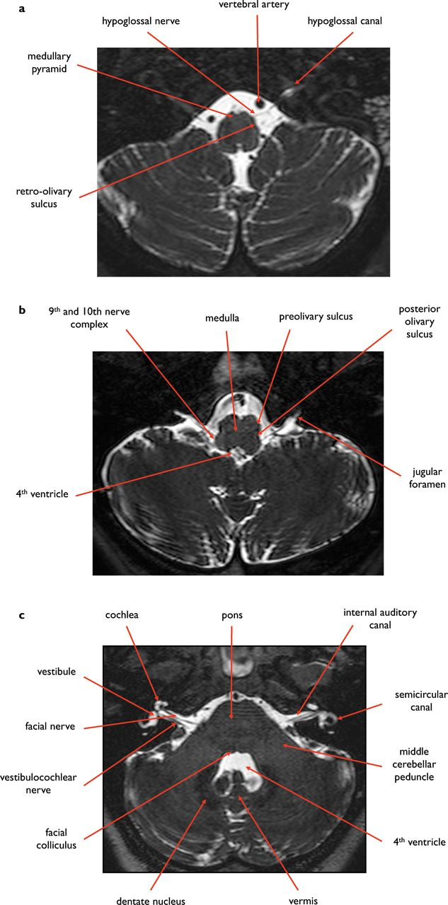 Normal anatomy of the base of the skull, orbit, pituitary and ...