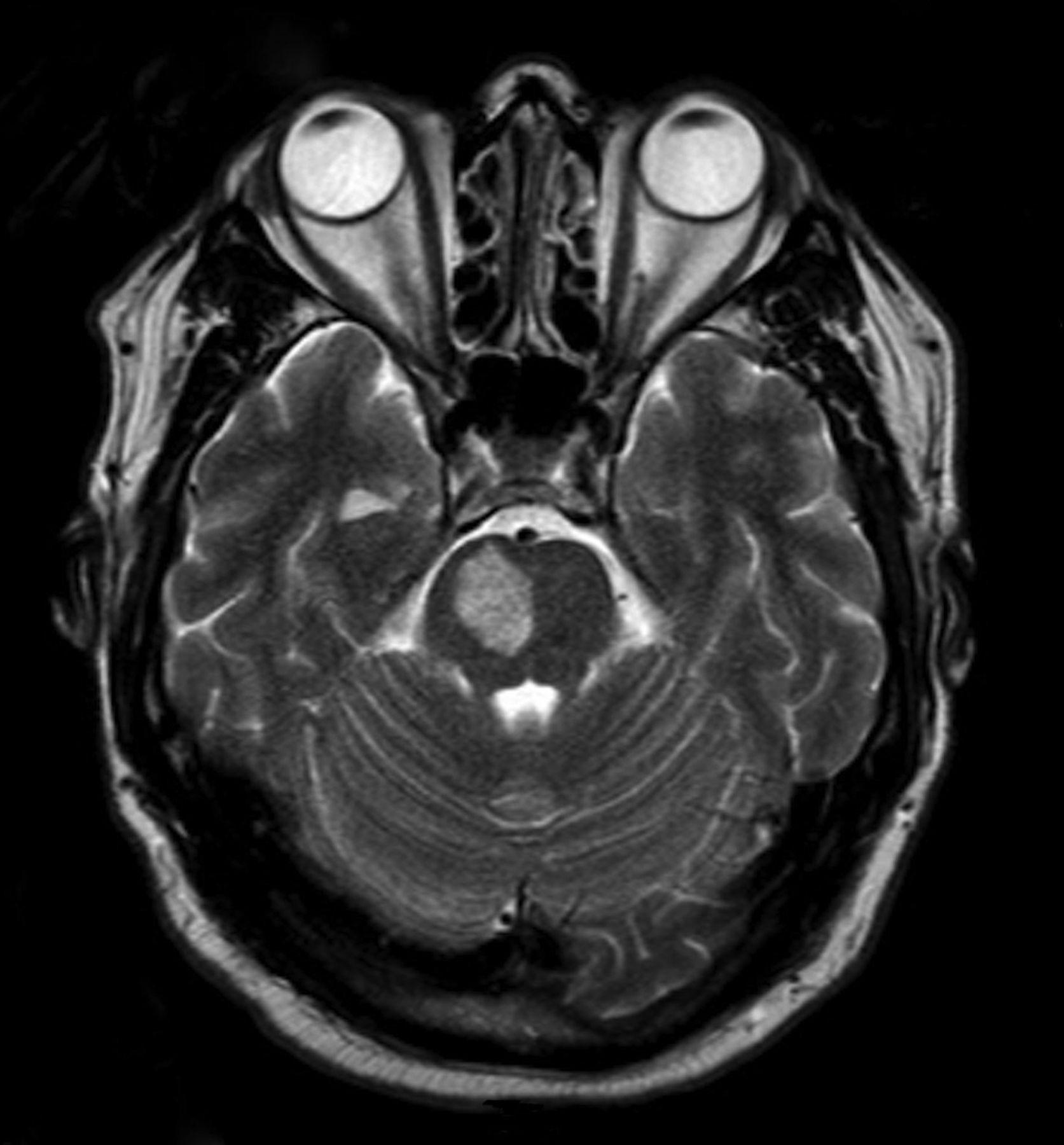 Old adversaries, modern mistakes: neurosyphilis   Practical Neurology1673 x 1800