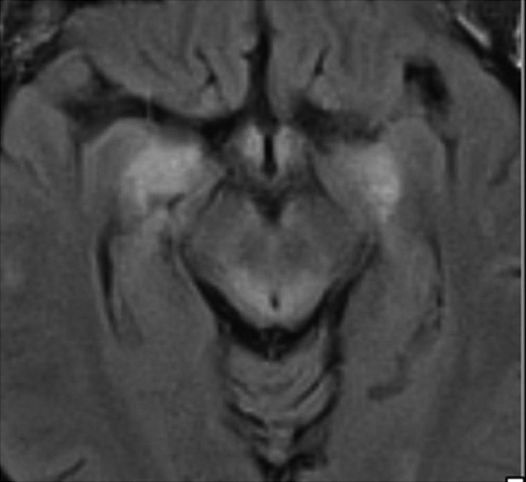 Midbrain encephalitis associated with neoplasia | Practical
