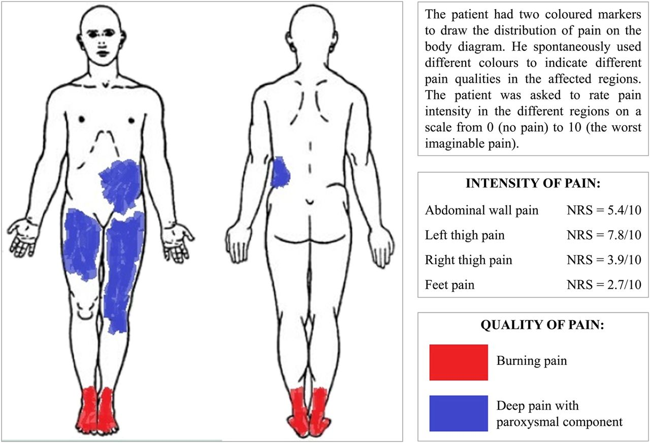 download figure � open in new tab � download powerpoint  figure 2  body  diagram showing pain