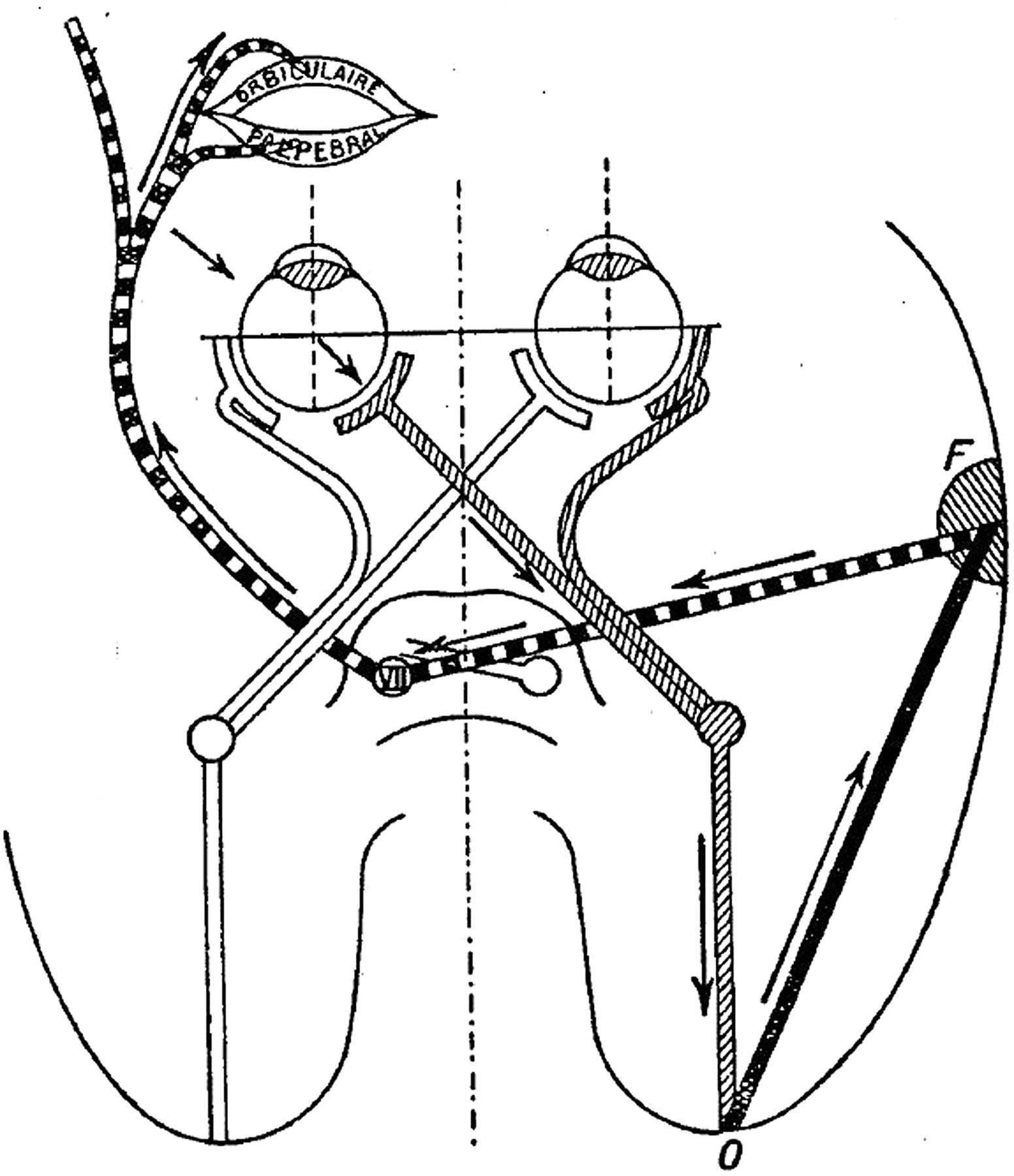 The menace reflex | Practical Neurology