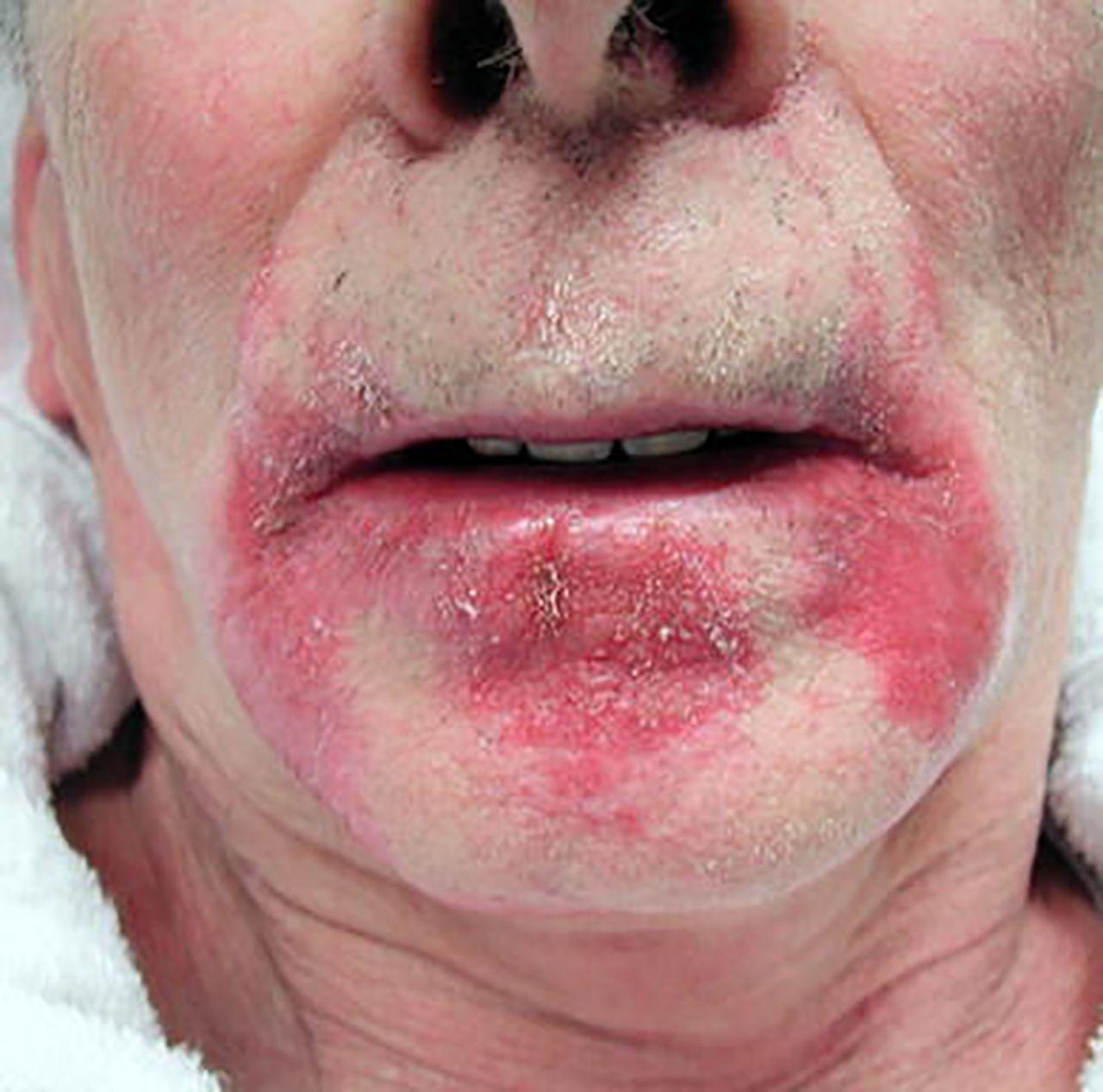 Angular Cheilitis - 0425