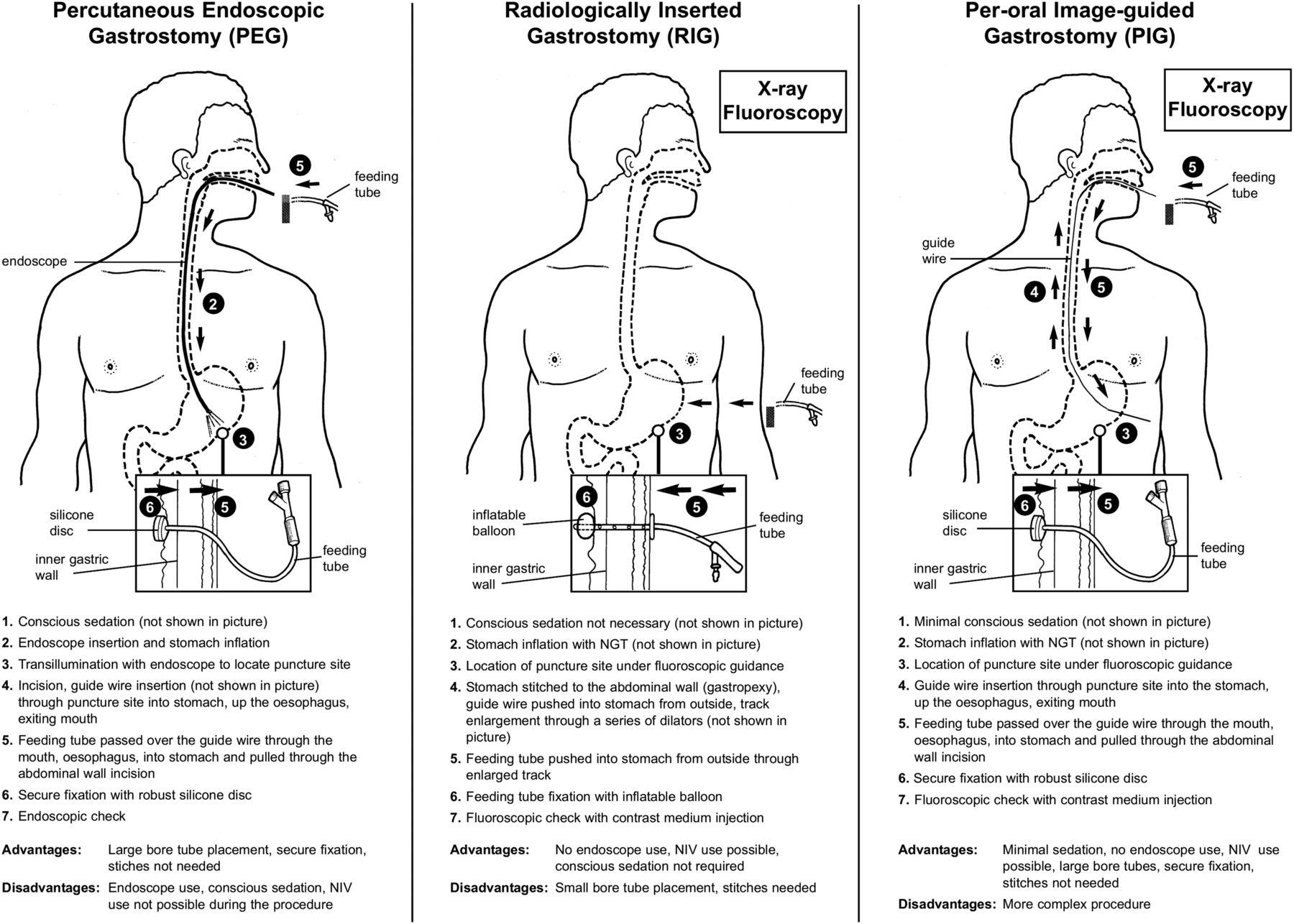 Enteral Feeding In Neurological Disorders Practical Neurology