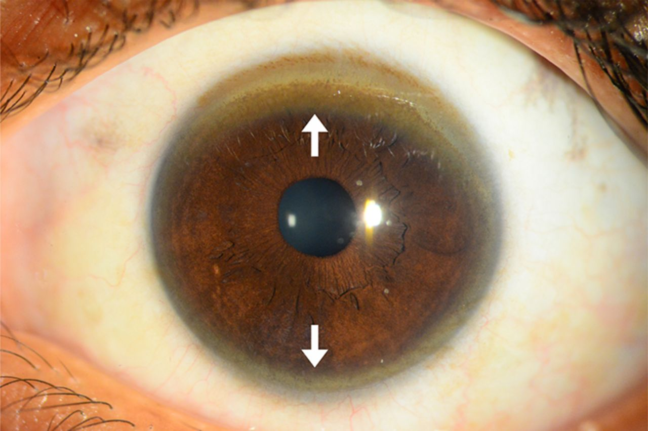 L Examination Demonstrates Kayser Fleischer Ring In Descemet S Membrane On The Inner Side Of Cornea Subtle Discoloration At Tip Arrow Head