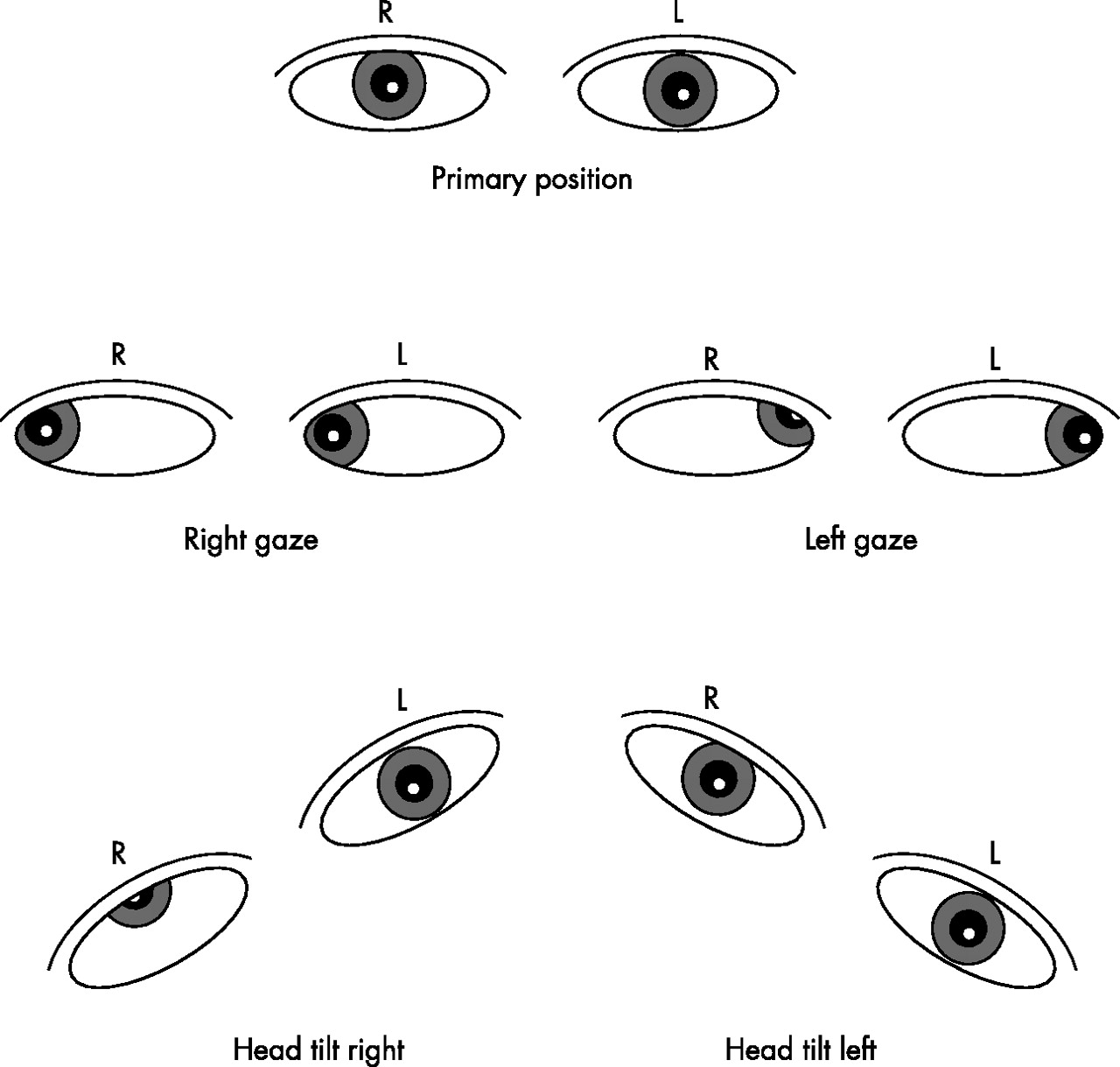 Examine eye movements | Practical Neurology