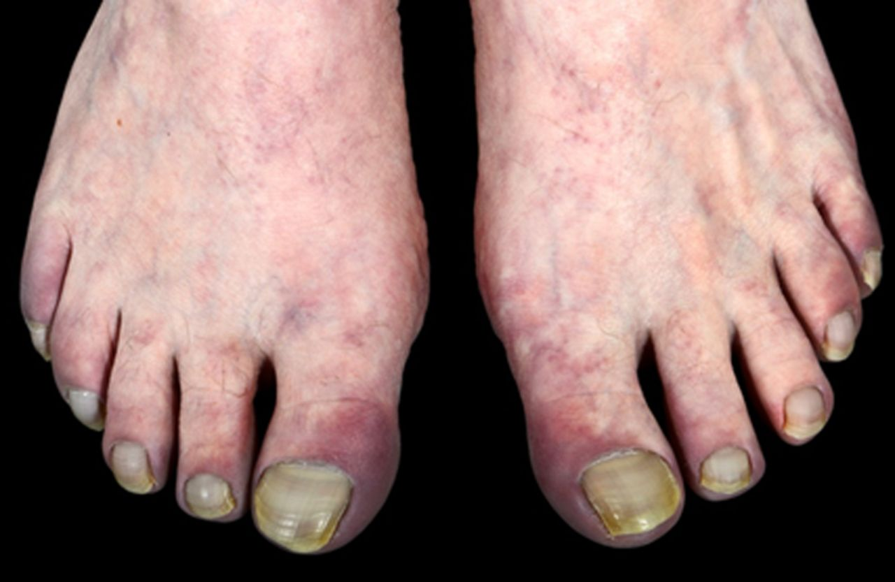 Sneddon's syndrome: it is all in the ectoderm | Practical ...