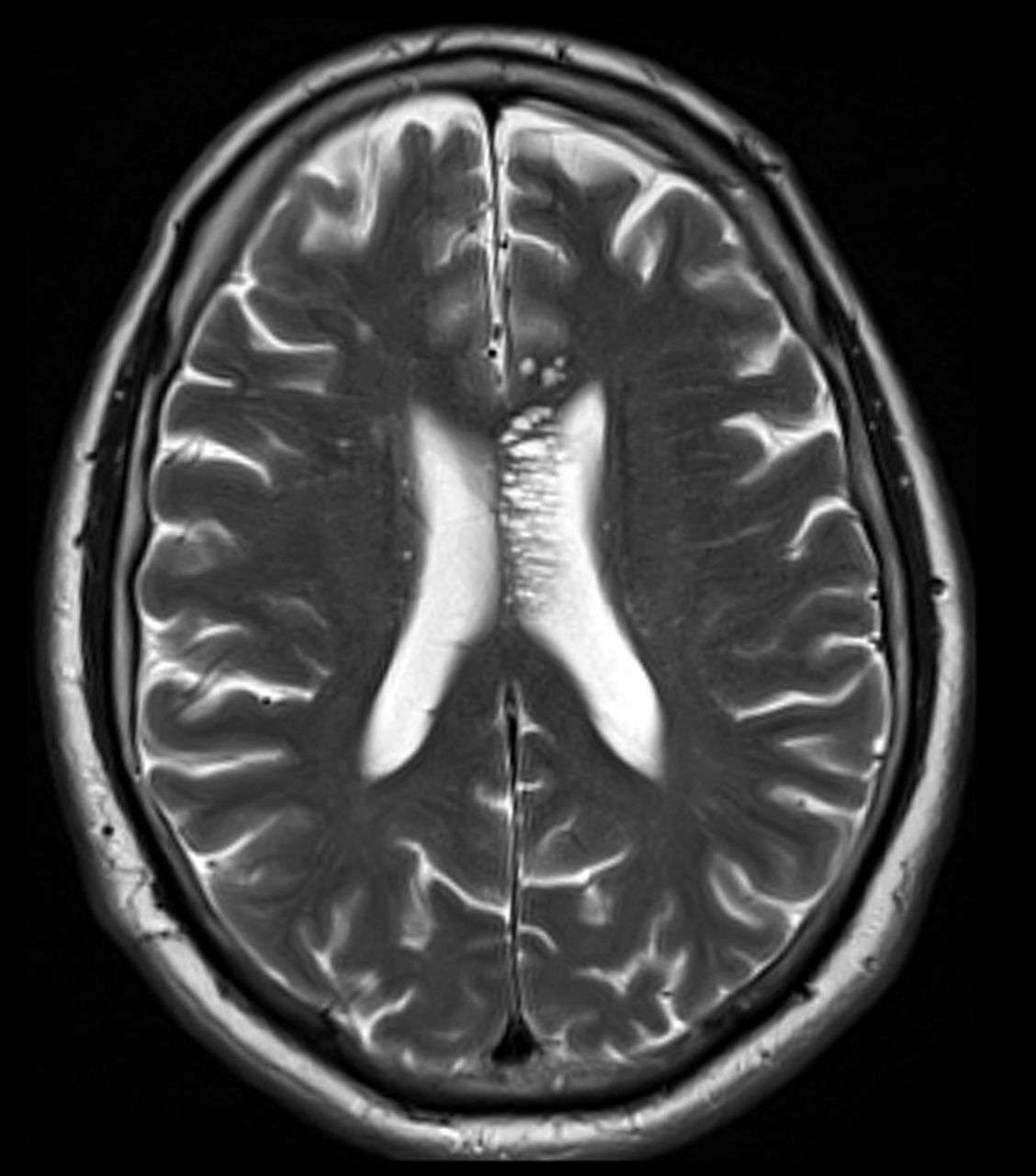 Tumefactive perivascular spaces: a rare incidental finding ...