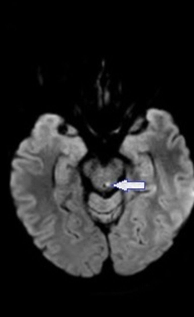 Trochlear Nerve Palsy Practical Neurology