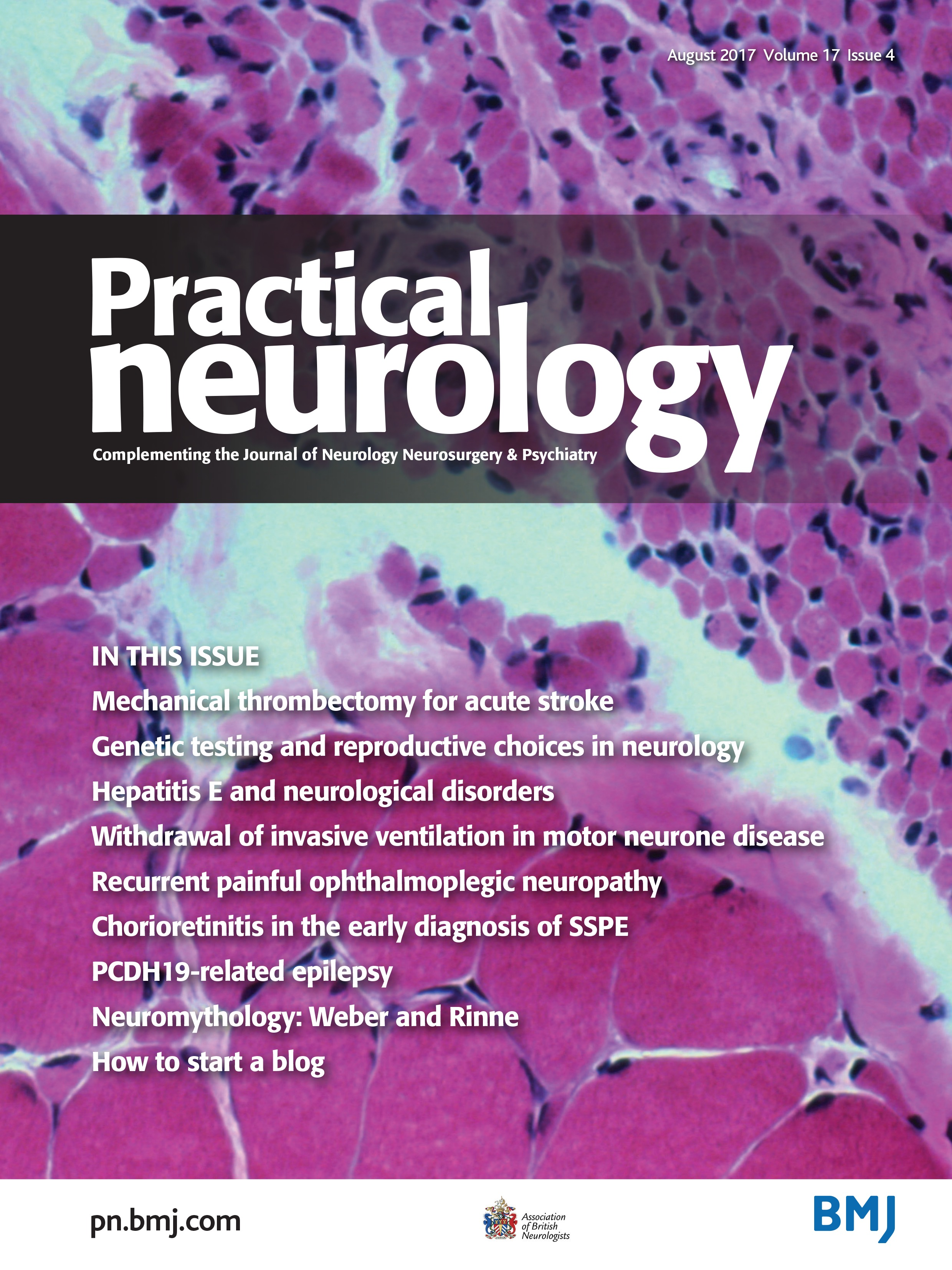 Revolution in acute ischaemic stroke care: a practical guide to