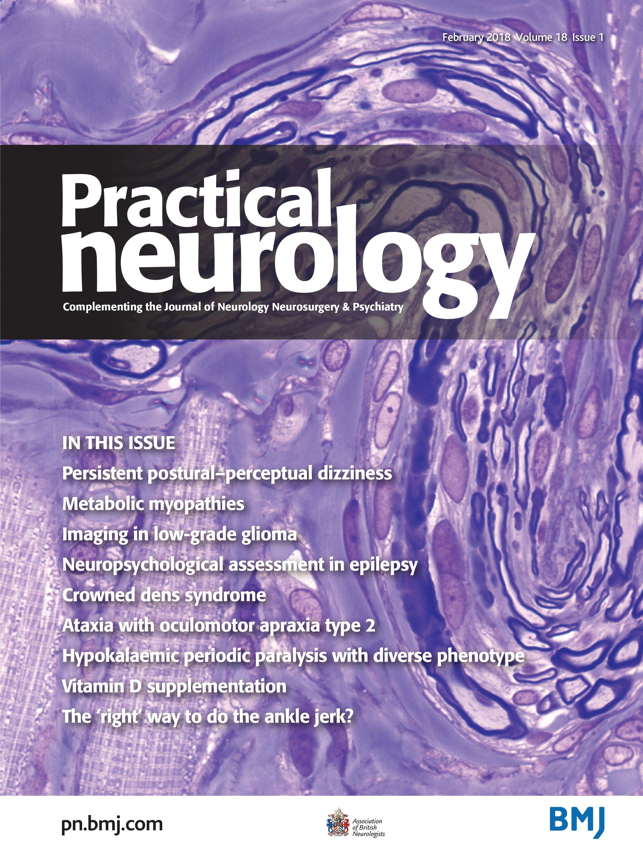 Persistent postural-perceptual dizziness (PPPD): a common