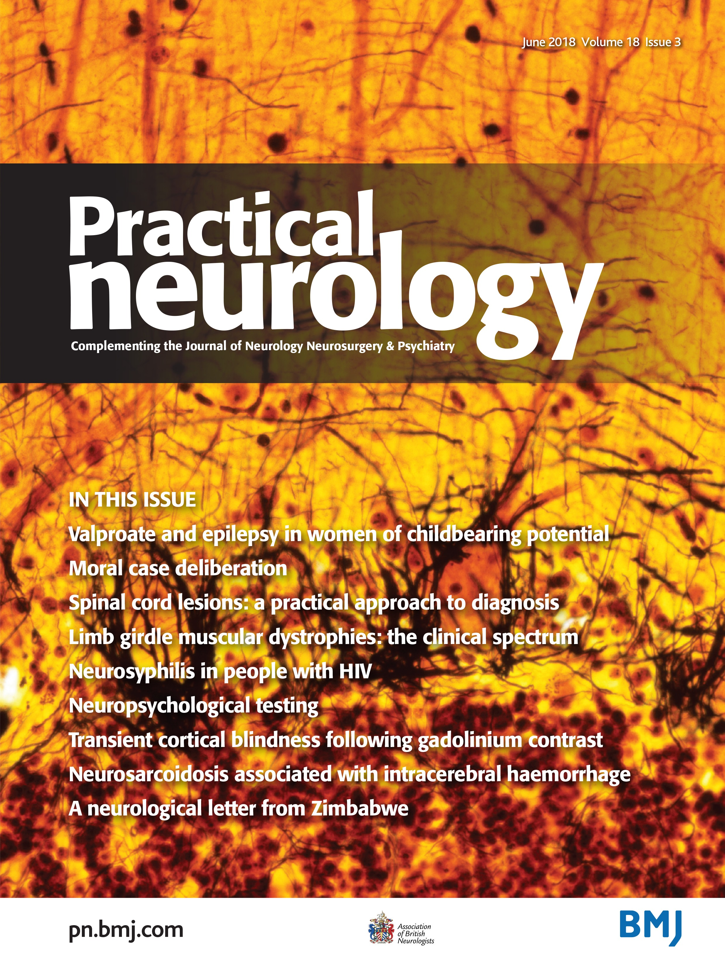 2c1805d87 Valproate and epilepsy: for women as well as men | Practical Neurology